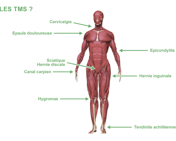 Pathologies TMS